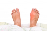 What Can Cause Bunions?