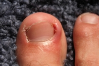 What Can Cause An Ingrown Toenail?